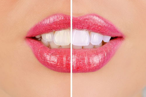 cheap teeth whitening melbourne