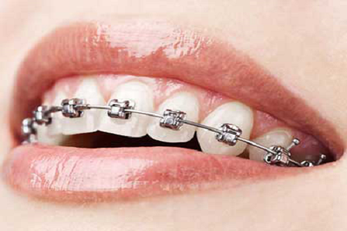 Dental Braces Melbourne